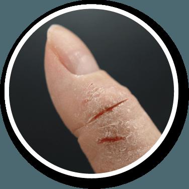 ひび割れ 親指 痛いかかとのひび割れ|治し方やおすすめのクリームをご紹介