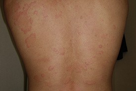 写真 鯖 蕁麻疹