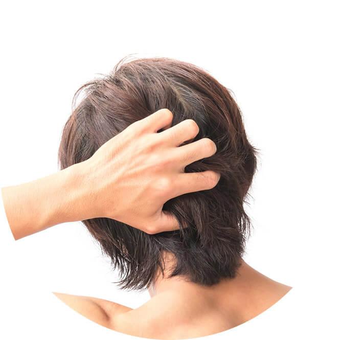 湿疹 かゆい 頭皮